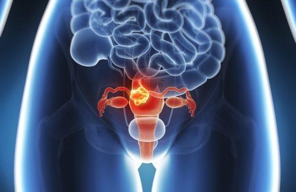 Комплексное применение методов физиобальнеотерапии в лечении больных миомой матки.
