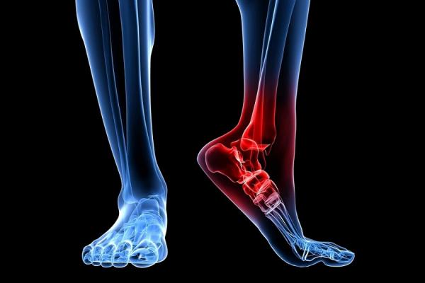 Метод лечения суставных заболеваний Артриты, артрозы, остеохондроз